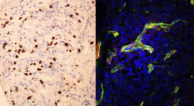 Izquierda: Linfocitos citotóxicos (en marrón) infiltrando un tumor colorectal con altos niveles de SOD3. Derecha: Células tumorales (cuyos núcleos se muestran en azul) con los vasos sanguíneos que los irrigan (en rojo) donde se observa la proteína de la membrana basal (en verde) que permite que los linfocitos accedan al tumor. / CNB